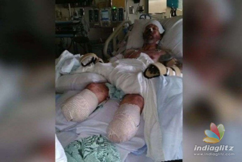 Man loses all four limbs after dog lick leads to severe infection