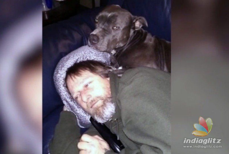 Man's Legs, Hands Amputated After Dog Licks Him